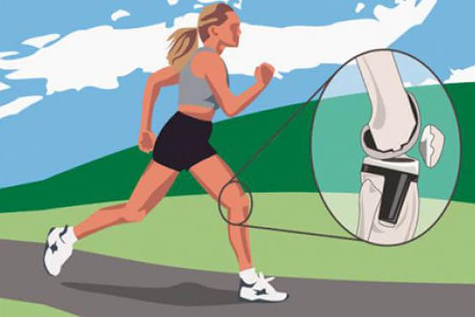 Разогрев коленей и коленных суставов